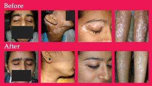 3colage_vitiligo
