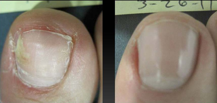 nail-treatment