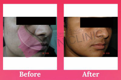 laser & cosmetic dermatology