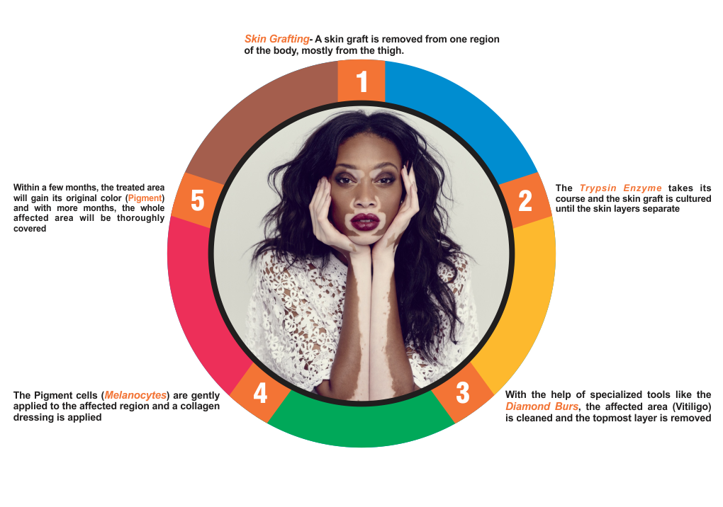 vitiligo-graphic-drmohan-png