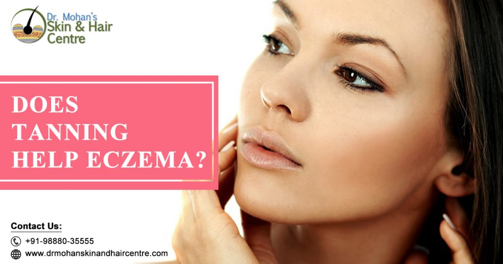 Can my Eczema disappear with Tanning and Controlled UV rays?