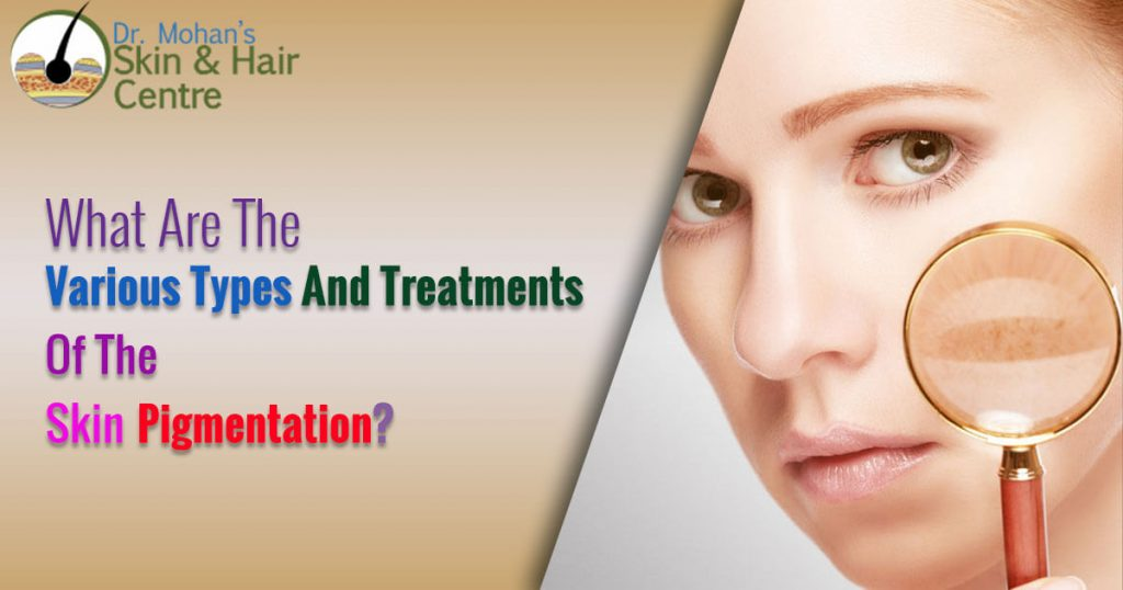 What Are The Various Types And Treatments Of The Skin Pigmentation?