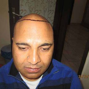 p1_front_hairline