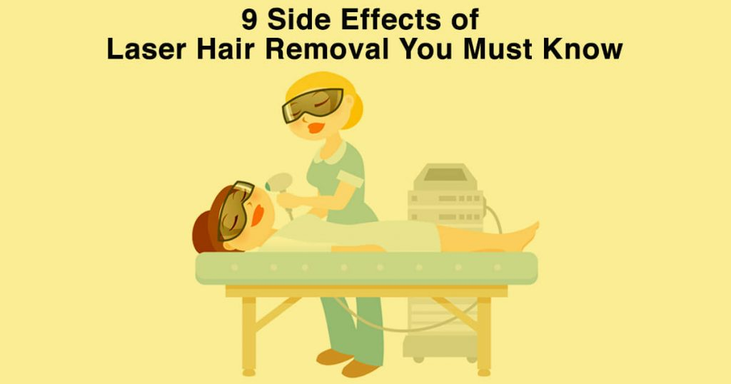 9 Side Effects of Laser Hair Removal You Must Know