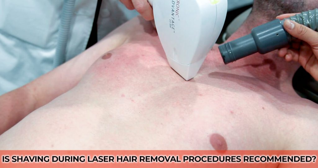 Is Shaving during Laser Hair Removal Procedures Recommended?