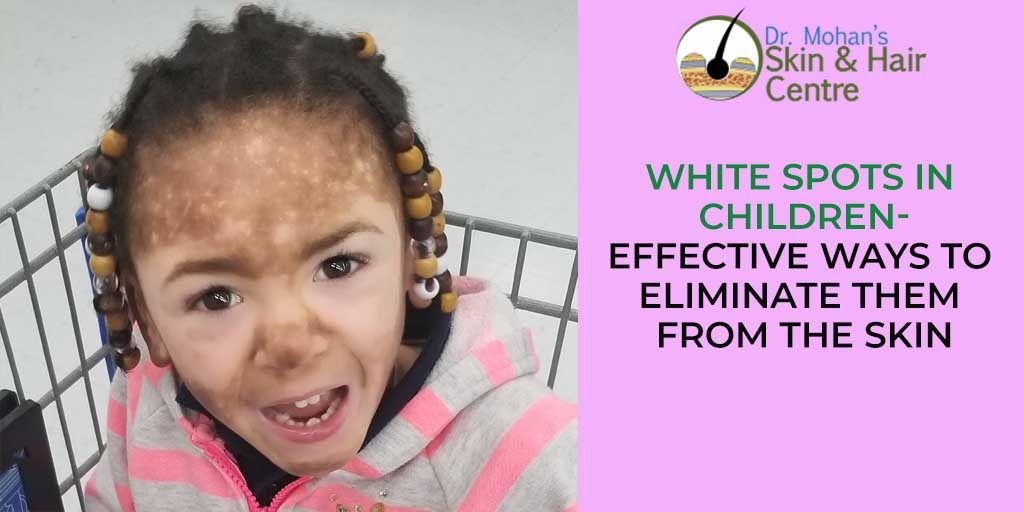White Spots in Children- Effective Ways to Eliminate them from the Skin