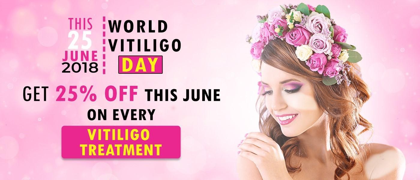 vitiligo day 25% off