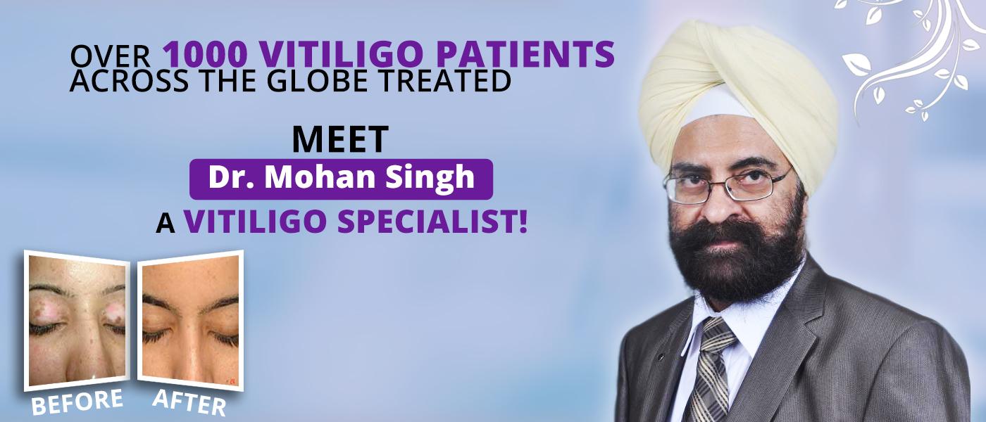Vitiligo specialist Dr. Mohan Singh