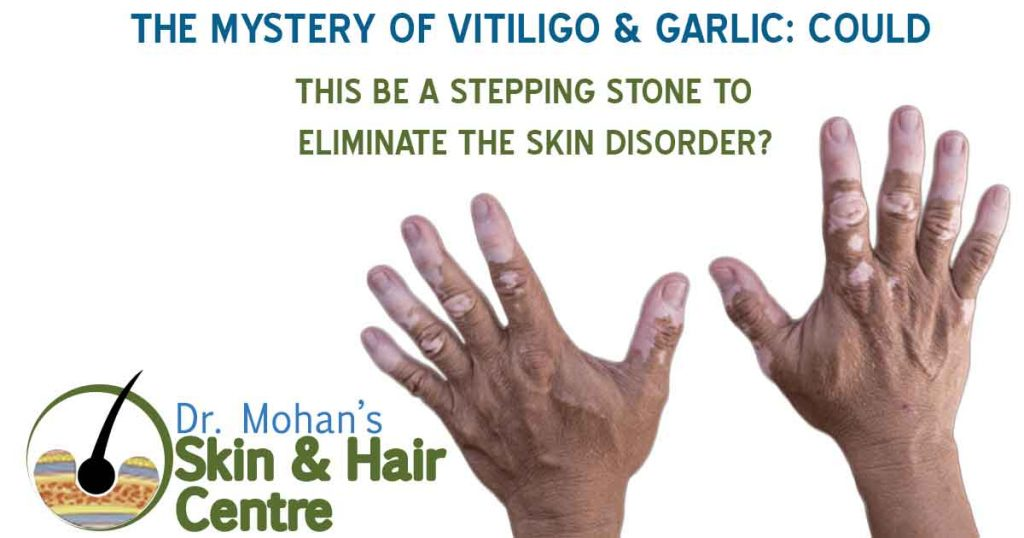 The Mystery of Vitiligo & Garlic: Could This Be A Stepping Stone To Eliminate the Skin Disorder?