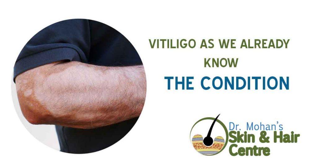 Vitiligo as We Already Know the Condition