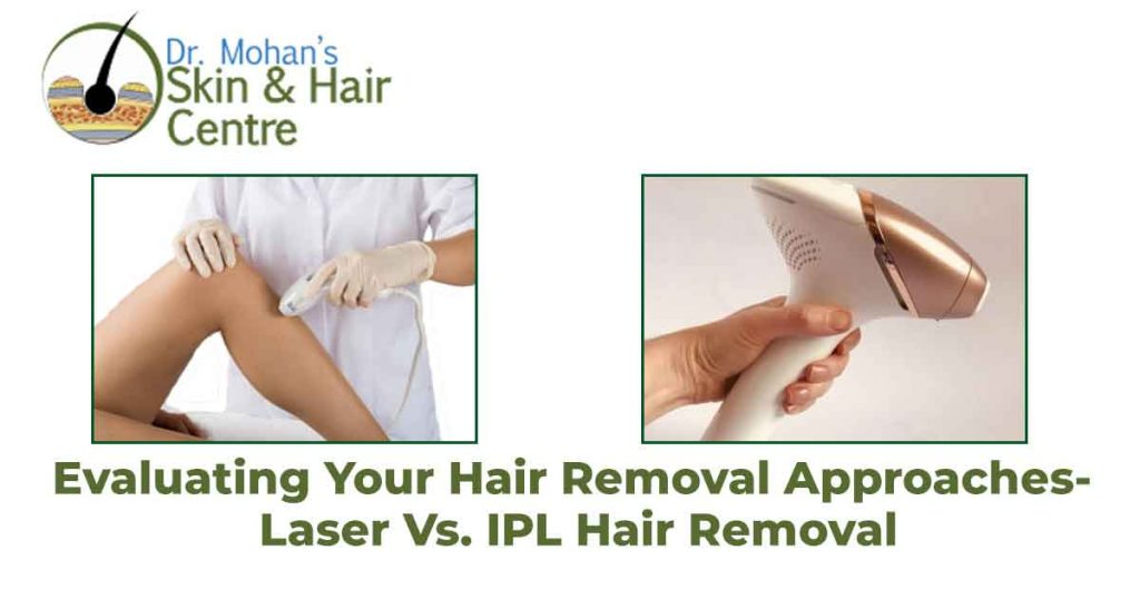 Evaluating Your Hair Removal Approaches- Laser Vs. IPL Hair Removal