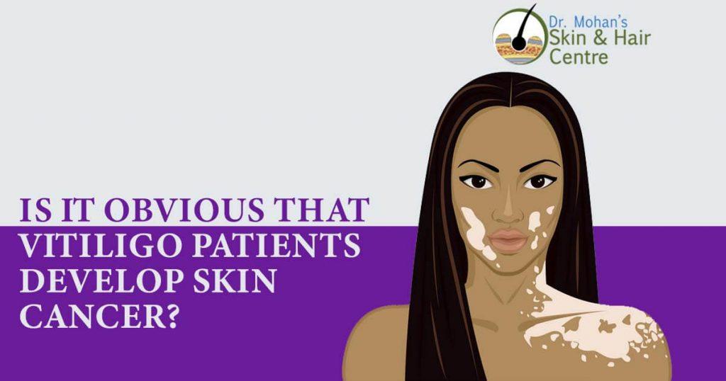 Is It Obvious That Vitiligo Patients Develop Skin Cancer?