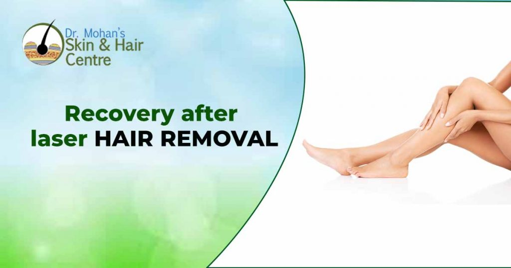 Recovery after laser hair removal