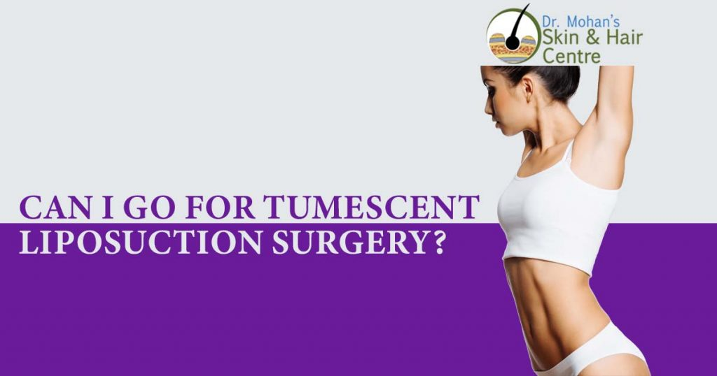 Can I Go For Tumescent Liposuction Surgery?