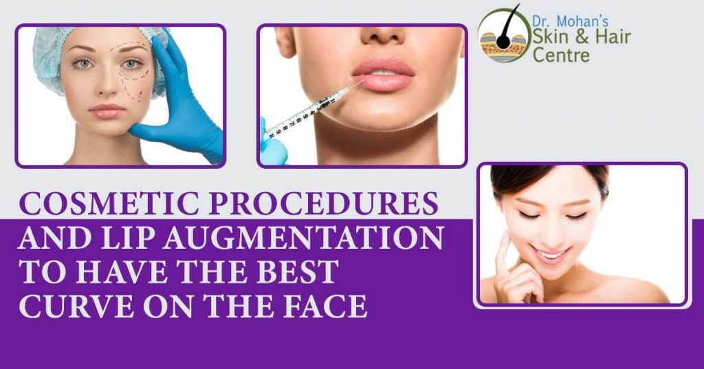 Cosmetic Procedures And Lip Augmentation To Have The Best Curve On The Face