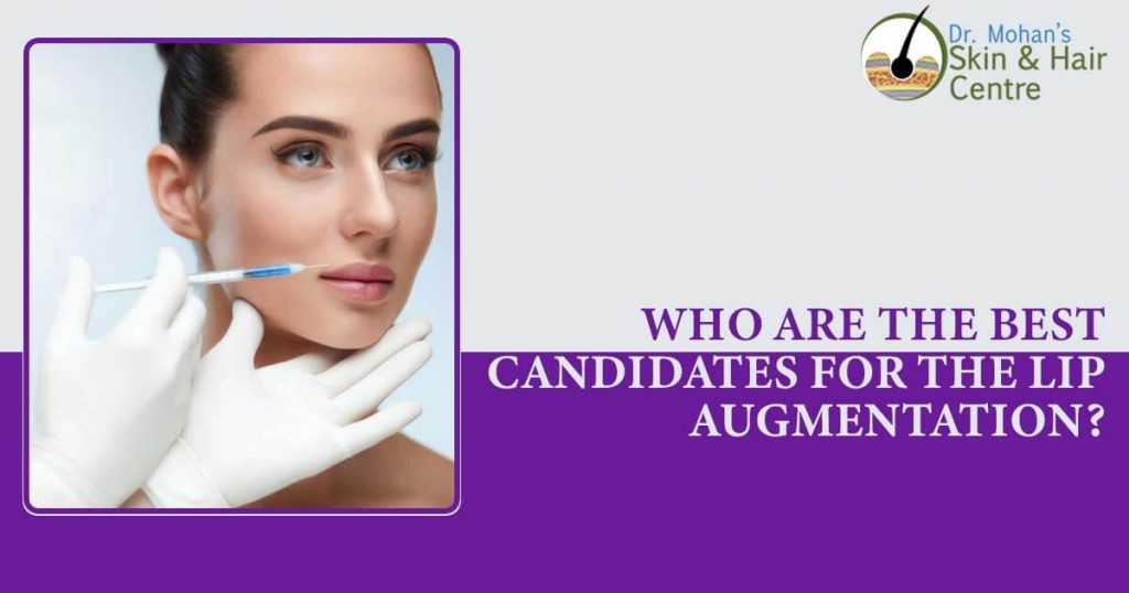 Who are the best candidates for the lip augmentation