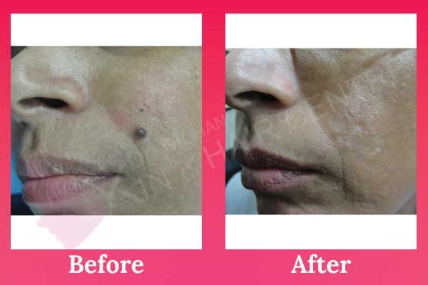 Laser Treatment for Mole and Wart Removal in Phagwara, Punjab, India