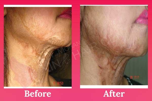 Laser Burn Scar Removal Treatment In Phagwara Punjab India