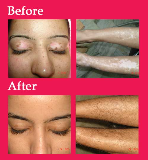 1colage_vitiligo11