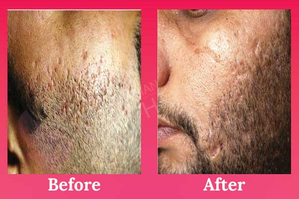 Low Cost Laser Acne Scar Removal Treatment In India Punjab Phagwara