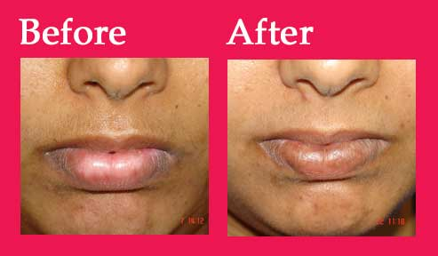 4colage_vitiligo1