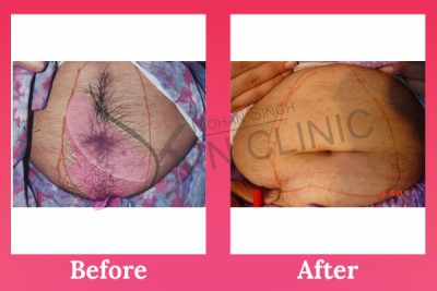 Laser Hair Removal In Jalandhar Affordable Treatment In Punjab