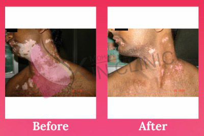 Best Vitiligo Treatment Result India