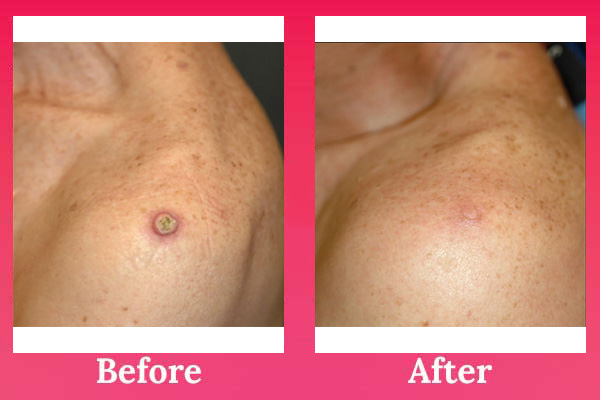Wart And Skin Tag Remover - # Anti Aging Skin Care Genital wart scars pictures
