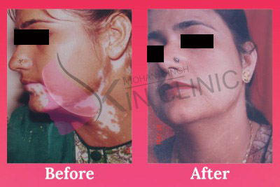 Neck Vitiligo Treatment Results