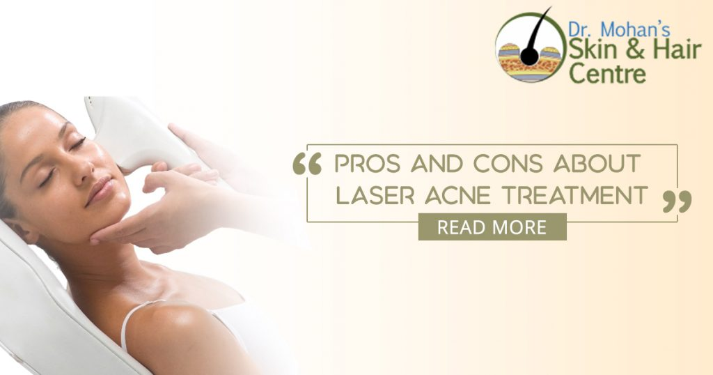 Laser Acne Treatment - Its Pros and Cons