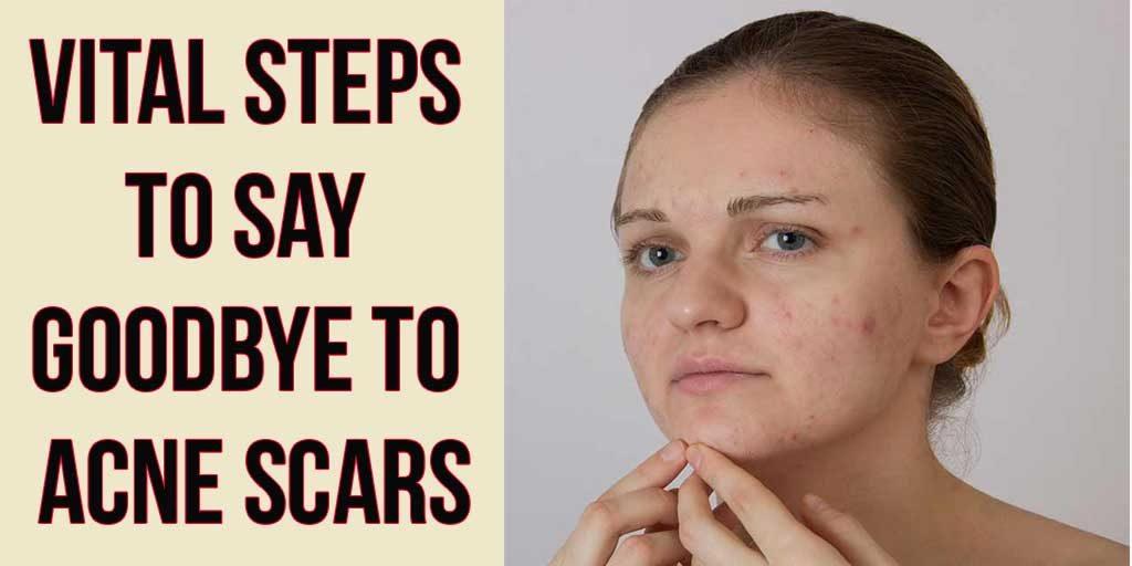 Vital Steps to Say Goodbye to Acne Scars