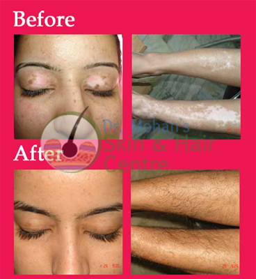 vitiligo treatment India Results