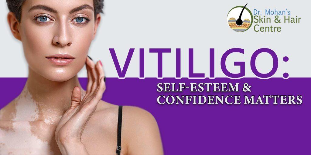Vitiligo: Self-Esteem & Confidence Matters
