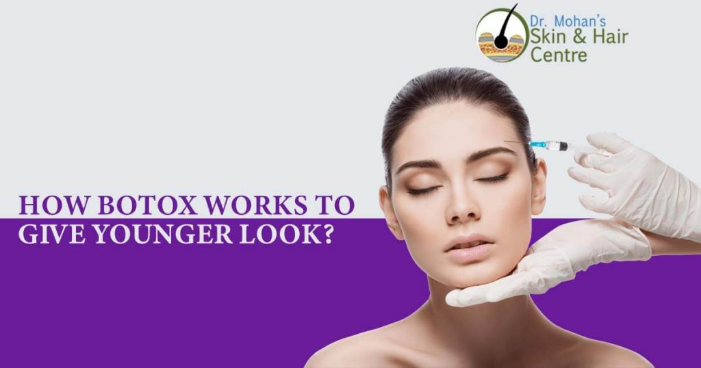 How Botox works to give younger look?