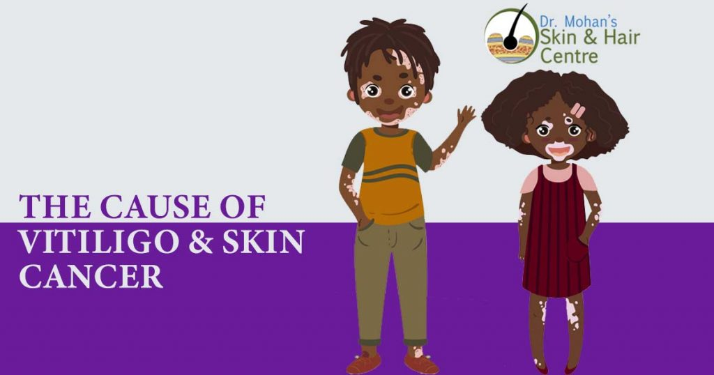 The Cause of Vitiligo & Skin Cancer
