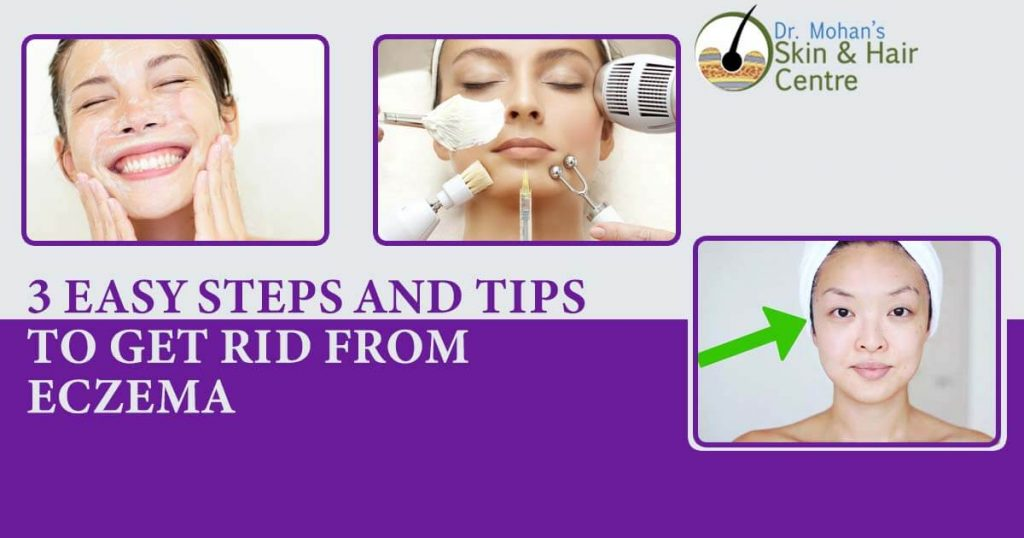 3 Easy Steps And Tips To Get Rid Of Eczema