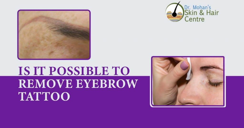 Is It Possible To Remove Eyebrow Tattoo