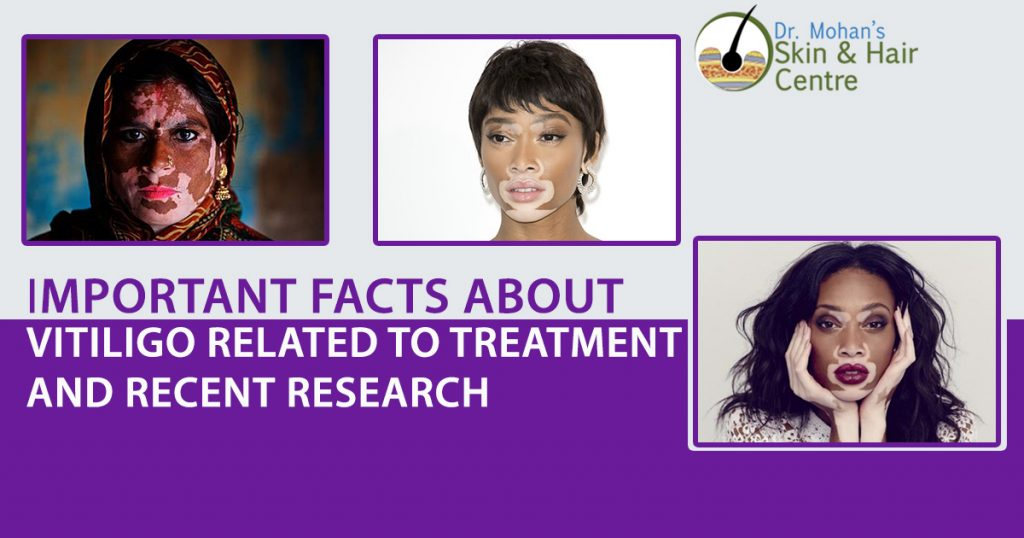 5 Important Facts About Vitiligo Related To Treatment And Recent Research