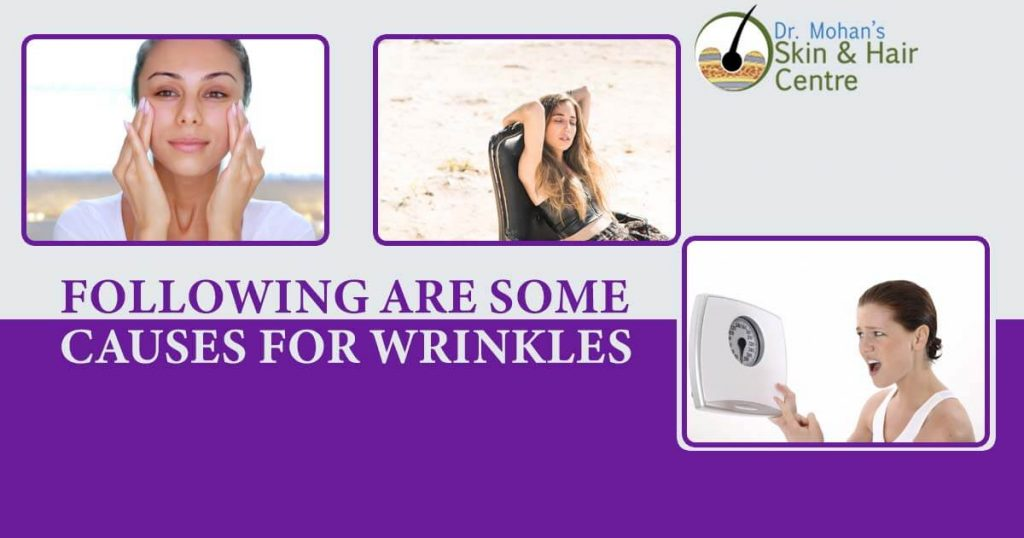 Following are some causes for wrinkles