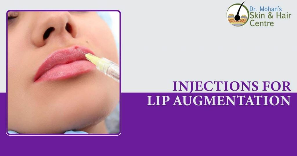 Injections for Lip Augmentation