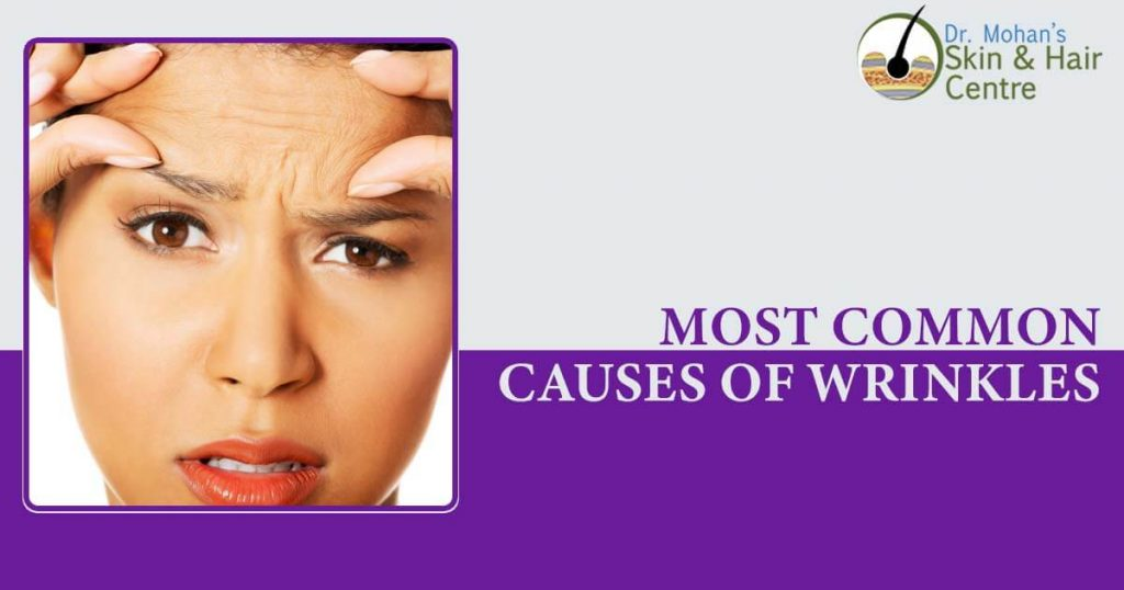 Most Common Causes Of Wrinkles