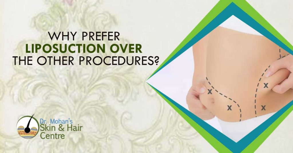 Why Prefer Liposuction Over The Other Procedures?