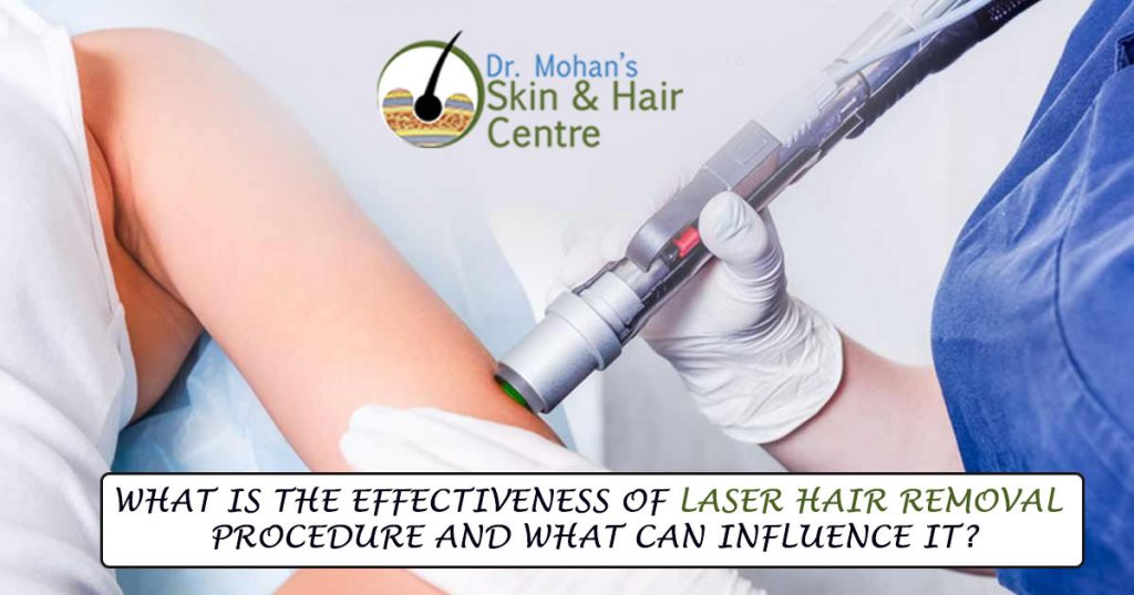 Laser Hair Removal in Moga - Full Body & Facial Laser Hair Removal Treatment