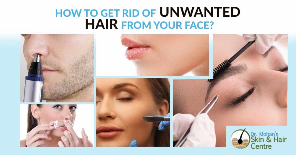 How to get rid of Unwanted Hair From Your Face?