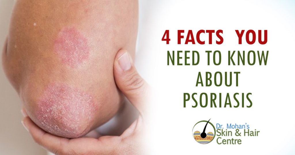 4 facts you need to know about psoriasis