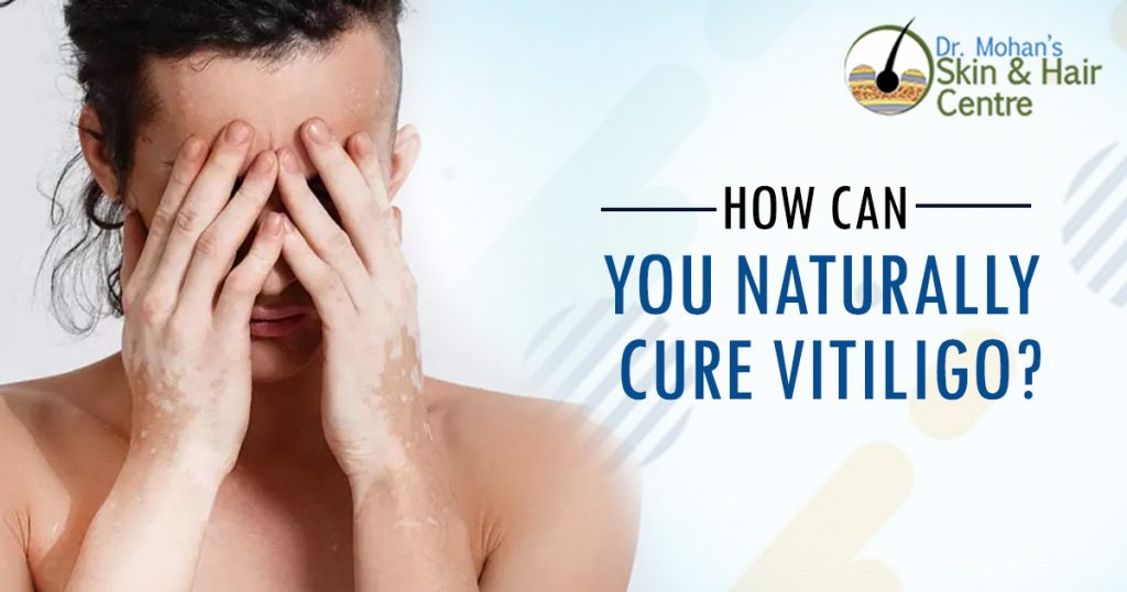 How Can You Naturally Cure Vitiligo
