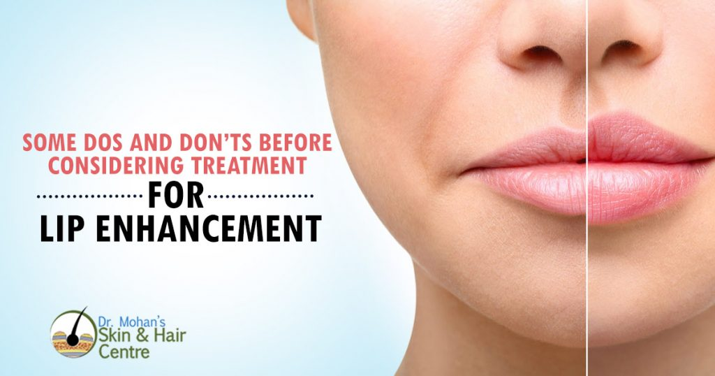 Pre lip Enhancement Surgery Tips