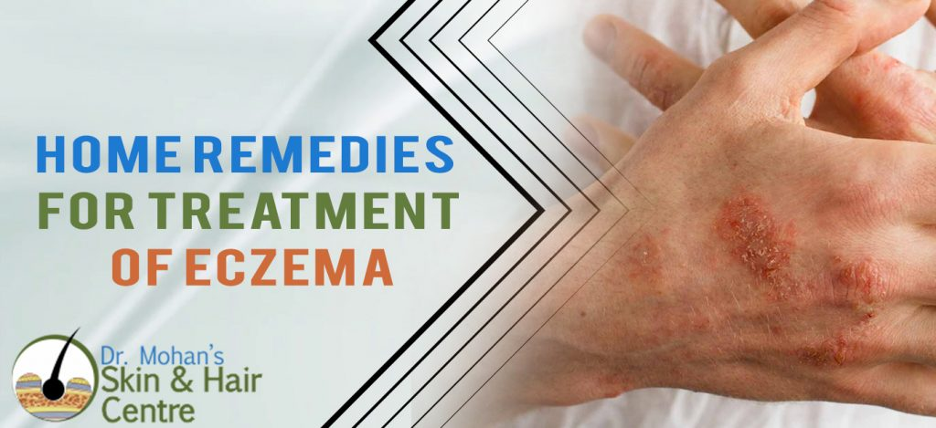Home Remedies for Treatment of Eczema