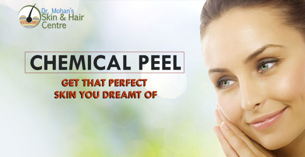 Chemical Peel - Get That Perfect Skin You Dreamt of