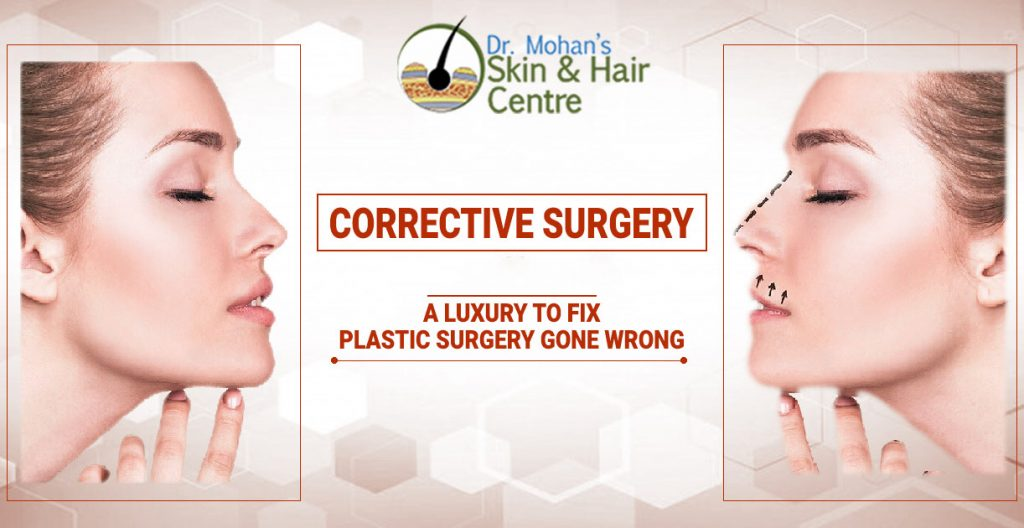 Corrective Surgery – A Luxury To Fix Plastic Surgery Gone Wrong